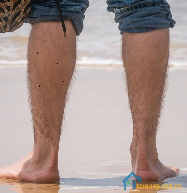 Nốt ruồi ở bắp chân trái đàn ông
