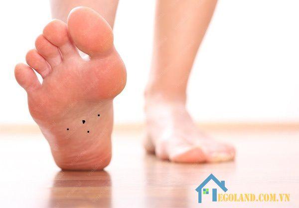 Nốt ruồi ở lòng bàn chân phải đàn ông
