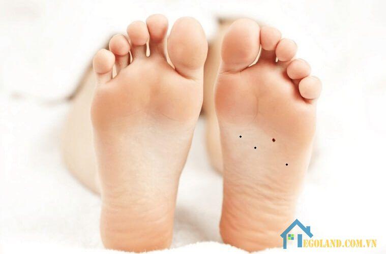 Nốt ruồi ở lòng bàn chân phải nữ