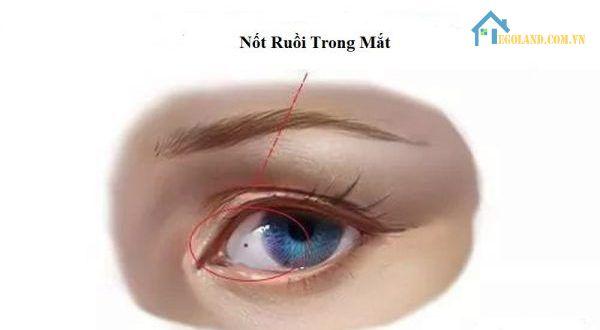Nốt ruồi trong mắt làm gia tăng tính đặc biệt cho đôi mắt